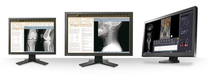 Eizo Radiforce MX